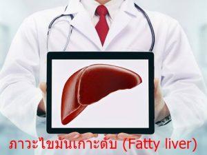 ภาวะไขมันเกาะตับ (Fatty liver)