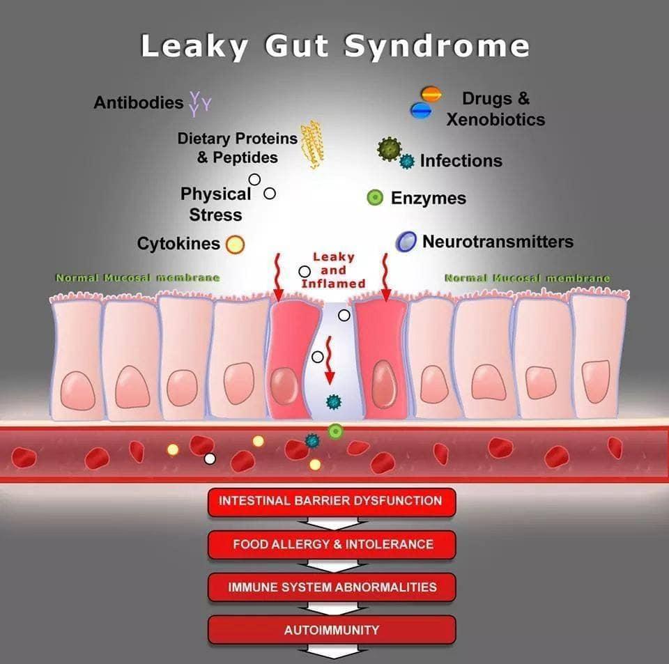 การปล่อยให้ลำไส้รั่ว หรือ Leaky gut นำไปสู่การเกิดโรคอะไรบ้าง
