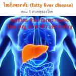 ไขมันพอกตับ (fatty liver disease) ตอน 1 สาเหตุของโรค