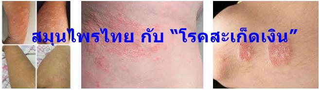 """สมุนไพรไทย กับ """"โรคสะเก็ดเงิน"""""""