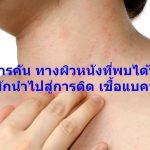 อาการคัน ทางผิวหนังที่พบได้บ่อย และมักนำไปสู่การติด เชื้อแบคทีเรีย